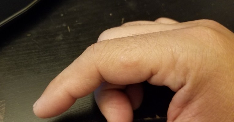 my finger on early signs of lupus