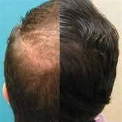 Red Light Therapy for Hair Loss Reviews