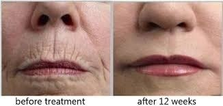 before and after treatment on light therapy for face