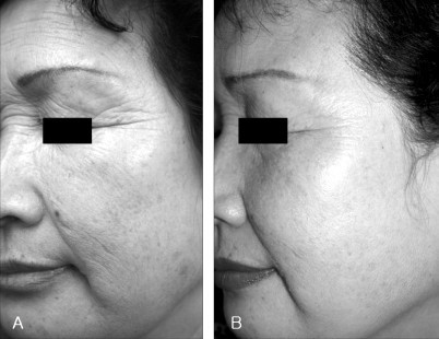 before and after picture of 6 months of infrared radiation treatment on face