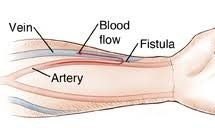 arteriovenous fistula internal picture inside hand