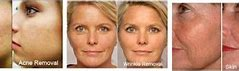 Red Light Therapy For Wrinkles Before and After : 1 Week Results