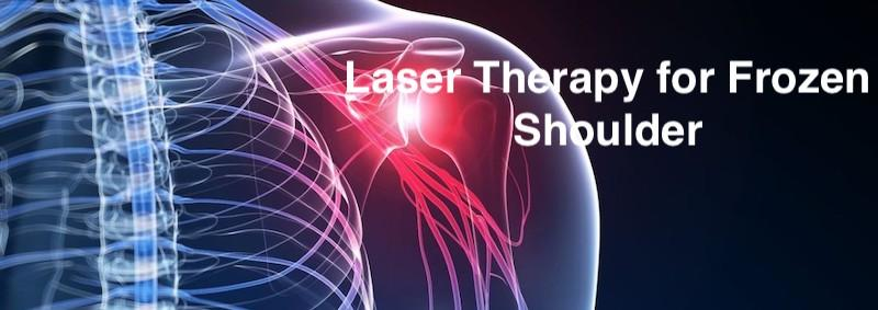 laser therapy for frozen shoulder
