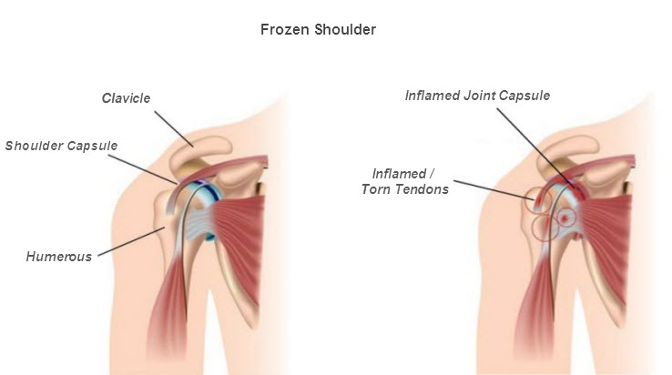 light therapy frozen shoulder